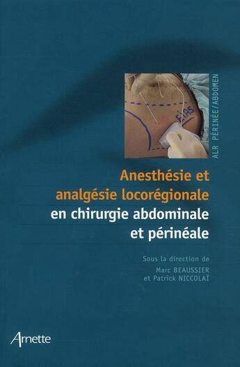 Couverture du livre « Anesthésie et analgésie locorégionale en chirurgie abdominale et périnéale » de Marc Beaussier et Patrick Niccolai aux éditions Arnette