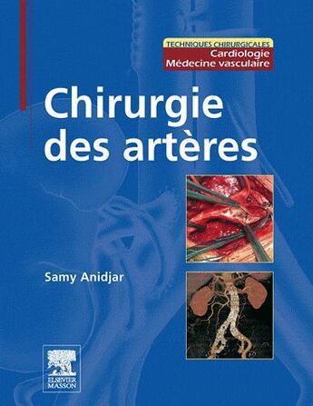 Couverture du livre « Chirurgie des artères » de Samy Anidjar aux éditions Elsevier-masson
