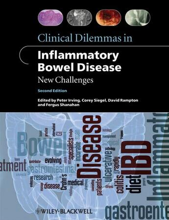 Couverture du livre « Clinical Dilemmas in Inflammatory Bowel Disease » de Fergus Shanahan et Peter Irving et David Rampton et Corey A. Siegel aux éditions Wiley-blackwell