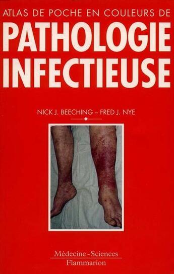 Couverture du livre « Atlas De Poche En Couleurs De Pathologie Infectieuse » de Nick-J Beeching et Fred-J Nye aux éditions Lavoisier Msp