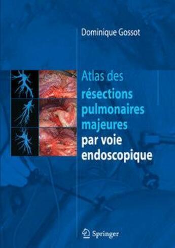 Couverture du livre « Atlas des résections pulmonaires majeures par voie endoscopique » de Dominique Gossot aux éditions Springer