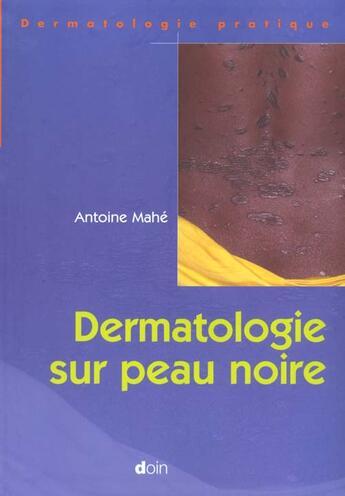 Couverture du livre « Dermatologie Sur Peau Noire » de Mahe Antoine aux éditions Doin