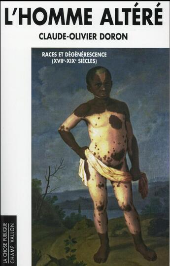 Couverture du livre « L'homme altéré ; races et dégénérescence (XVIIe-XIXe siècles) » de Claude-Olivier Doron aux éditions Champ Vallon