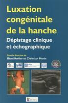 Couverture du livre « Luxation congénitale de la hanche ; dépistage clinique et échographique » de Remi Kohler et Christian Morin aux éditions Sauramps Medical